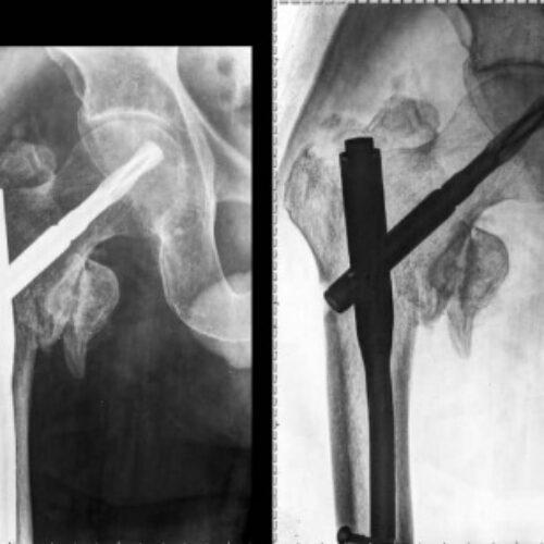 رادیولوژی و سونوگرافی در منزل امید
